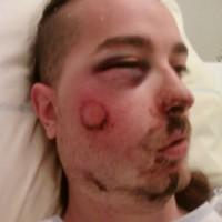 [França] Militante veganarquista atingido no rosto por um tiro de flashball em Toulouse