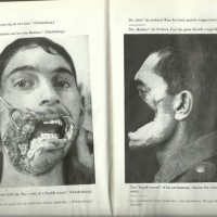 """[Reino Unido] """"GUERRA contra GUERRA"""" - fotos chocantes do clássico livro antiguerra do anarquista alemão Ernst Friedrich"""