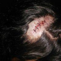"""[Fortaleza-CE] Relato de anarquista covardemente agredido por militantes do MTST e da """"Frente Povo Sem Medo"""""""