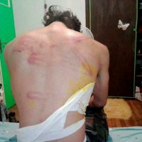 [Grécia] Terrorismo de Estado: tortura nas ruas secundárias de Atenas