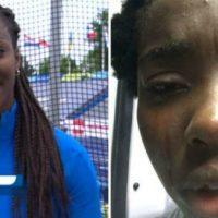 [Itália] Atleta italiana negra é agredida com ovada no olho