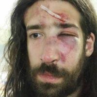 [Grécia] Antifascista é agredido por neonazistas em Atenas