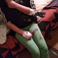 [Ucrânia] Em Lviv, anarquistas são violentamente atacados e espancados por neonazistas