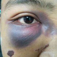 """[Indonésia] Jovem anarquista é agredida pela polícia durante o """"May Day Bandung"""""""