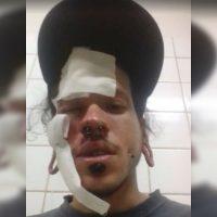 Ataque neonazista contra jovem antifascista na Ceilândia (DF)
