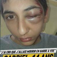 [França] Gabriel, 14 anos: espancado no chão pela polícia, corre o risco de perder um olho