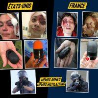 Estados Unidos/França: A polícia que mutila
