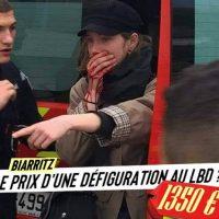 [França] O prêmio por uma desfiguração causada pela polícia? 1350 Euros!